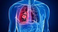 بهبود سلامت ریه ها در ایام کرونا به کمک رژیم غذایی مناسب
